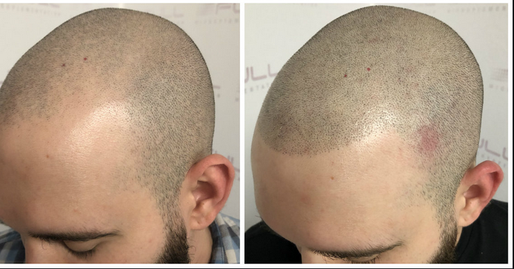SMP- The Modern Man's Cure to Hair Loss
