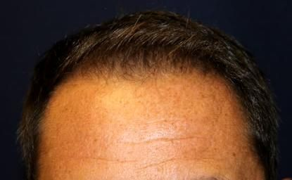 The hair restoration procedure is very cost-effective
